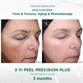 Aging Skin (Ages 40+)